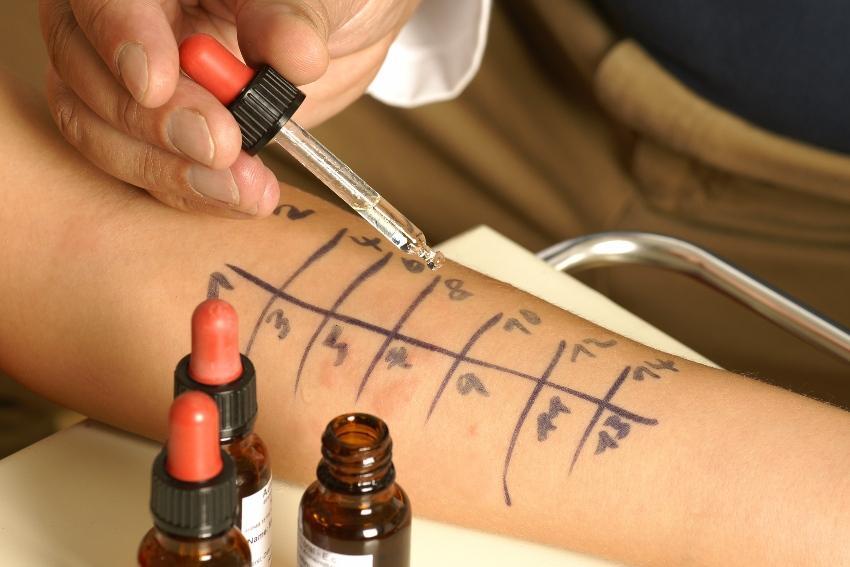 Allergietest auf Arm mit Pipette - Ringe für Metallallergiker ermitteln